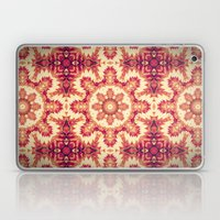 Dream-catching Vertigo  Laptop & iPad Skin