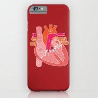 Heart Diagram iPhone 6 Slim Case