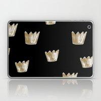 Crown Pattern Laptop & iPad Skin