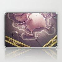 Free Sug(A)r! Laptop & iPad Skin