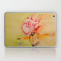 Articulated King Laptop & iPad Skin