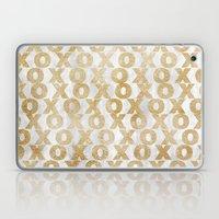 Xoxo Gold Laptop & iPad Skin
