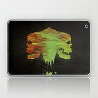 Pulling Apart Laptop & iPad Skin