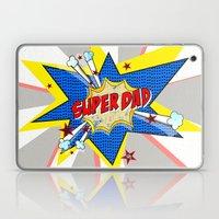 SUPERDAD Laptop & iPad Skin