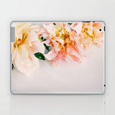 generations Laptop & iPad Skin