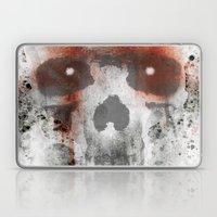 Common end Laptop & iPad Skin