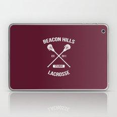 Beacon Hills Teen Wolf Stilinski Laptop & iPad Skin