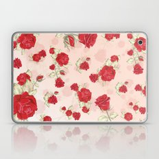 Love for all Laptop & iPad Skin