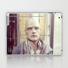 On chain Laptop & iPad Skin