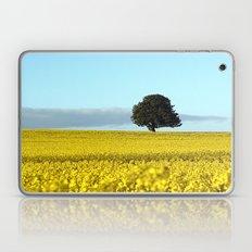 Fife's Golden Fields Of Rapeseed. Laptop & iPad Skin
