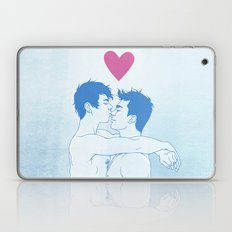 Love! Laptop & iPad Skin