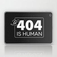 To 404 Is Human Laptop & iPad Skin
