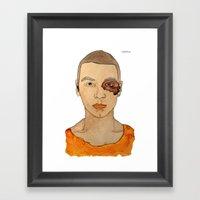 Bruised Thug Framed Art Print