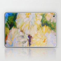 Duchess of Edinburgh Laptop & iPad Skin