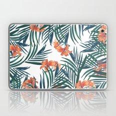 Tropical Lilies Laptop & iPad Skin