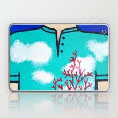 Togetherness 3 Laptop & iPad Skin