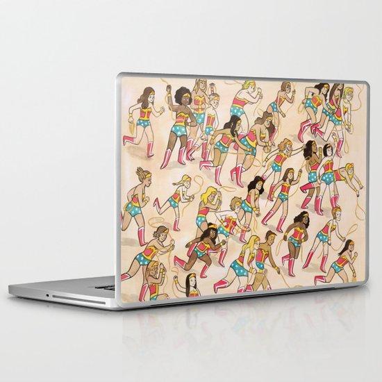 Wonder Women! Laptop & iPad Skin