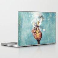 LOVE - Heart On Fire Laptop & iPad Skin