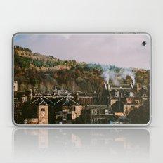 Scottish Rooftops Laptop & iPad Skin