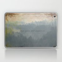 Your Grace still amazes me Laptop & iPad Skin