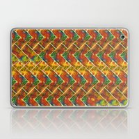 Check Mate Laptop & iPad Skin
