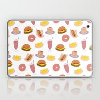 American Diner Food Laptop & iPad Skin
