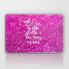 Glitter in my Veins II (Photo of Glitter) Laptop & iPad Skin
