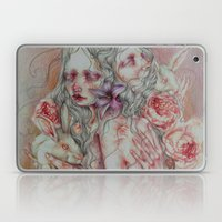 Lovely Skin Laptop & iPad Skin