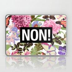 NON Laptop & iPad Skin