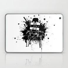 GuessWho? *remastered* Laptop & iPad Skin