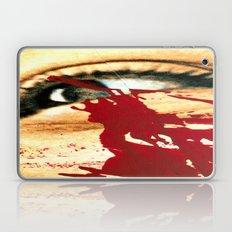 Crisis And Tears  Laptop & iPad Skin