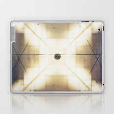 X is up Laptop & iPad Skin