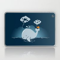I Have a Dream Laptop & iPad Skin