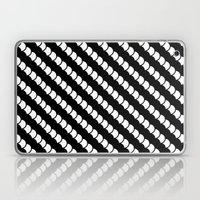 Spinal Stripes Laptop & iPad Skin