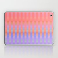 Oh So Stripy Laptop & iPad Skin
