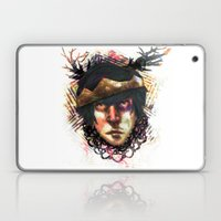 Gleam Diamond Punk King Laptop & iPad Skin