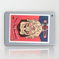 Ted Ooze Laptop & iPad Skin