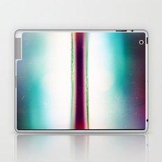 AL (35mm multi exposure) Laptop & iPad Skin