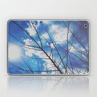 Thorns On Blue Laptop & iPad Skin