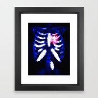 X-ray heart. Framed Art Print
