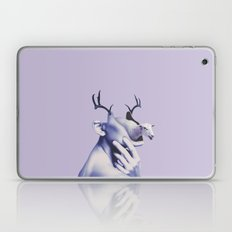 Unbounded Lust Laptop & iPad Skin