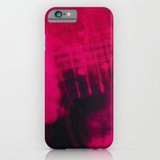 My Bloody Valentine - Lo… iPhone 6 Slim Case