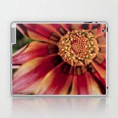 Centralized Laptop & iPad Skin