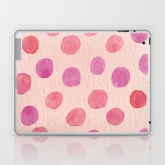Over and Above Laptop & iPad Skin