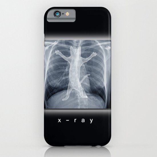 x-ray iPhone & iPod Case
