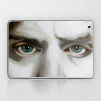 The Caterpillar/Adam's Apple Laptop & iPad Skin