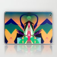 2011-09-05 00_16_12 Laptop & iPad Skin