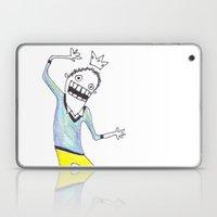 King Yellowpants Laptop & iPad Skin