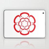 Suction Laptop & iPad Skin
