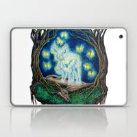 Progeny Laptop & iPad Skin